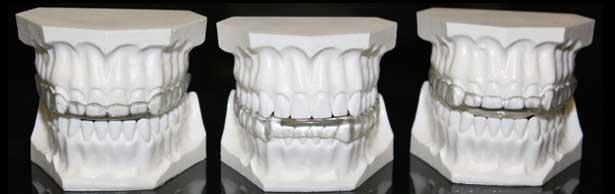 Bruxismo, apretar dientes, rechinar dientes, céntrico, apretamiento, excéntrico, rechinamiento, destrucción del esmalte, destrucción de dentina, desgaste de dientes, facetas de desgaste, férula de descarga, férula oclusal, guarda oclusal, apretar mandibula, protector dental, clínica dental, madrid, majadahonda, boadilla del monte, dentista, dientes, odontologo