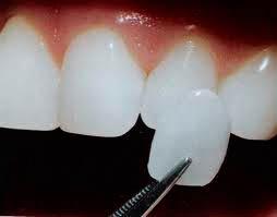 Rejuvenecer sonrisa, dientes blancos, dientes luminosos, dientes colocados, ausencia de dientes, dientes oscuros, dientes irregulares, dientes rotos, dientes mal posicionados, dientes de tamaño alterado, retracción de las encías, restauraciones dentales rotas o coloreadas, carillas de porcelana, láminas de porcelana, mejorar estética dental, enmascarar mal posiciones, carillas de composite, carillas dentales, reconstrucción dental, majadahonda, boadilla del monte, madrid, dentista, clinica dental, odontologo, dientes