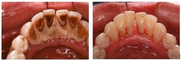 Sangrado de encías, enfermedad periodontal, gingivitis, periodontitis, enfermedad periodontal, infección bacteriana de encías, enrojecimiento de encías, retracción de encías, sensibilidad dentaria al frío, abscesos o flemones, desplazamiento de dientes, raspaje e alisado de raíz del diente, lindhe, regeneración de hueso y encía, madrid, majadahonda, boadilla del monte, clínica dental, dentista, dientes, odontologo